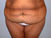 Abdominoplasty Gallery - Patient 4594898 - Image 13