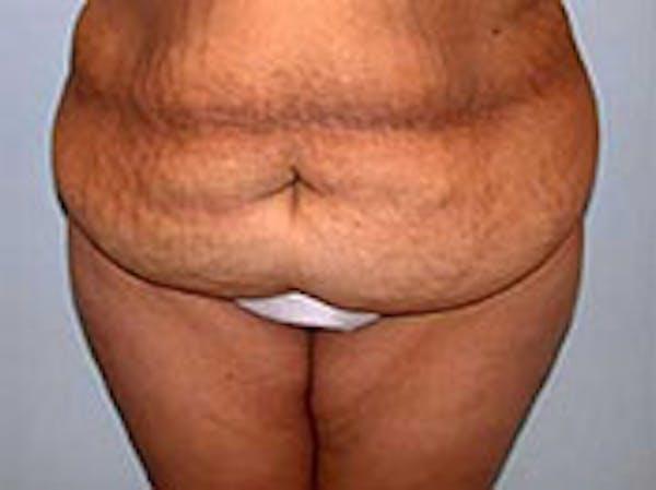 Tummy Tuck (Abdominoplasty) Gallery - Patient 4594898 - Image 1
