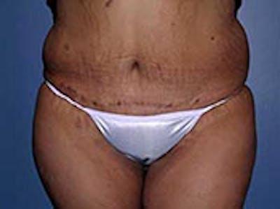 Tummy Tuck (Abdominoplasty) Gallery - Patient 4594898 - Image 2