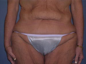 Tummy Tuck (Abdominoplasty) Gallery - Patient 4594899 - Image 1