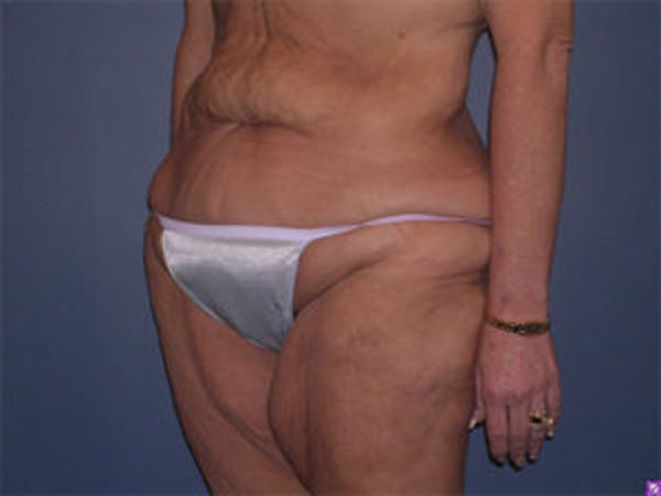 Tummy Tuck (Abdominoplasty) Gallery - Patient 4594899 - Image 3