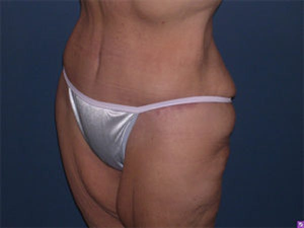 Tummy Tuck (Abdominoplasty) Gallery - Patient 4594899 - Image 4