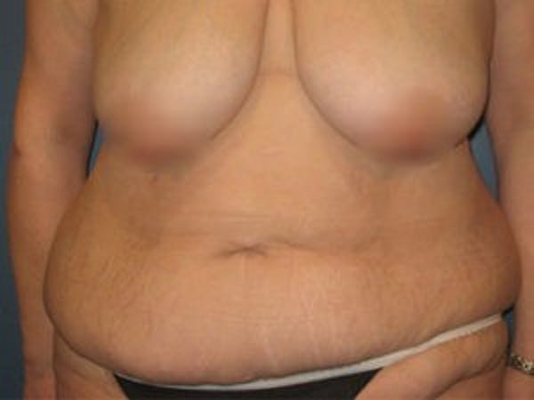 Tummy Tuck (Abdominoplasty) Gallery - Patient 4594900 - Image 1