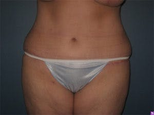 Tummy Tuck (Abdominoplasty) Gallery - Patient 4594900 - Image 2