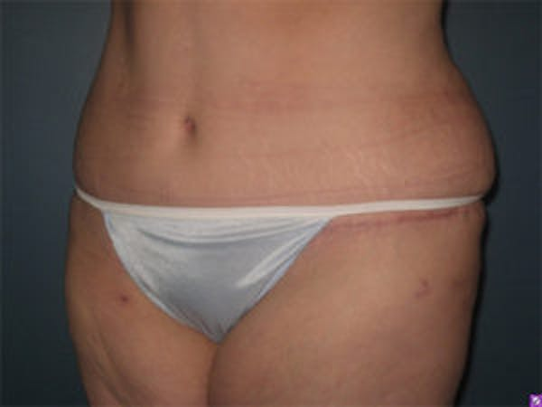 Tummy Tuck (Abdominoplasty) Gallery - Patient 4594900 - Image 4