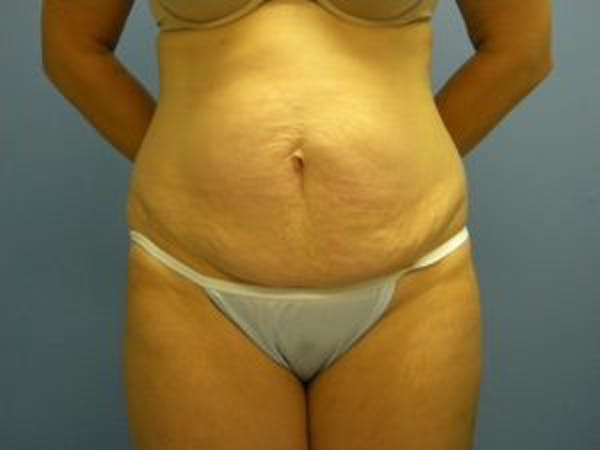 Tummy Tuck (Abdominoplasty) Gallery - Patient 4594901 - Image 1