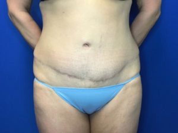 Tummy Tuck (Abdominoplasty) Gallery - Patient 4594901 - Image 2