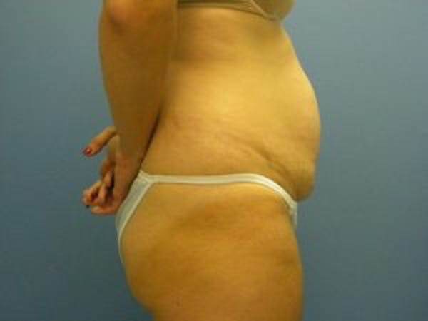 Tummy Tuck (Abdominoplasty) Gallery - Patient 4594901 - Image 3