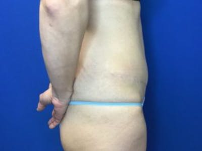 Tummy Tuck (Abdominoplasty) Gallery - Patient 4594901 - Image 4