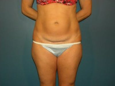 Tummy Tuck (Abdominoplasty) Gallery - Patient 4594902 - Image 1