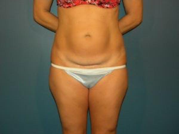 Tummy Tuck (Abdominoplasty) Gallery - Patient 4594902 - Image 1