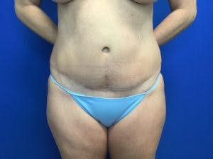 Tummy Tuck (Abdominoplasty) Gallery - Patient 4594902 - Image 2