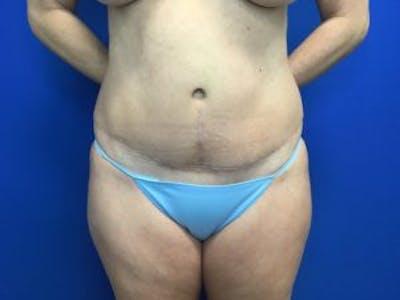 Tummy Tuck (Abdominoplasty) Gallery - Patient 4594902 - Image 2
