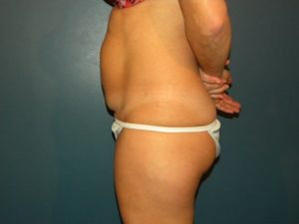 Tummy Tuck (Abdominoplasty) Gallery - Patient 4594902 - Image 3