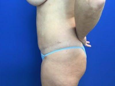 Tummy Tuck (Abdominoplasty) Gallery - Patient 4594902 - Image 4