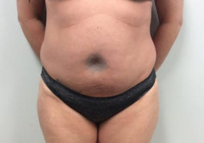 Tummy Tuck (Abdominoplasty) Gallery - Patient 4594903 - Image 1