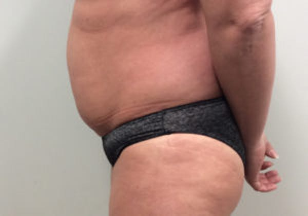 Tummy Tuck (Abdominoplasty) Gallery - Patient 4594903 - Image 3