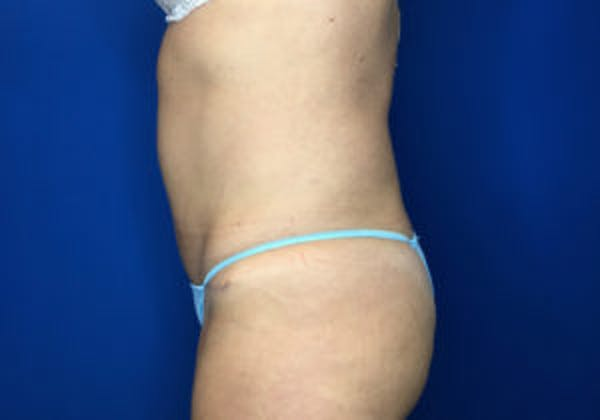 Tummy Tuck (Abdominoplasty) Gallery - Patient 4594903 - Image 4