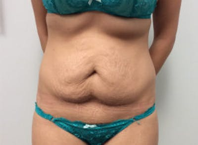 Tummy Tuck (Abdominoplasty) Gallery - Patient 4594904 - Image 1