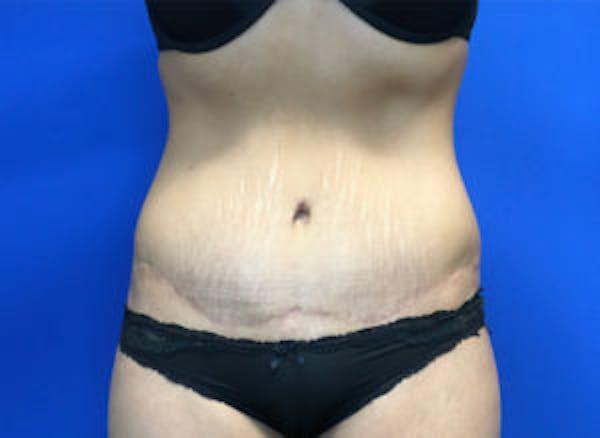 Tummy Tuck (Abdominoplasty) Gallery - Patient 4594904 - Image 2