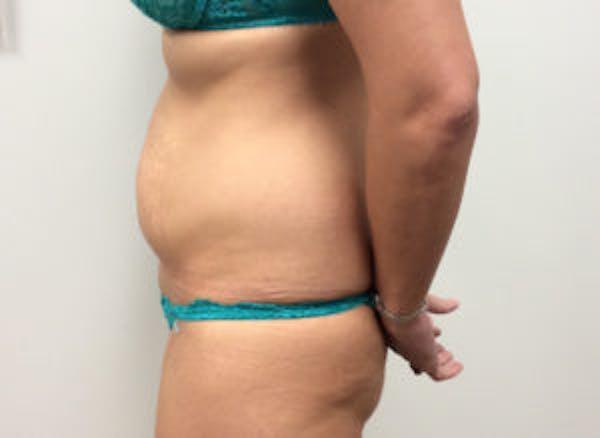 Tummy Tuck (Abdominoplasty) Gallery - Patient 4594904 - Image 3