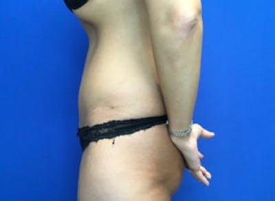 Tummy Tuck (Abdominoplasty) Gallery - Patient 4594904 - Image 4