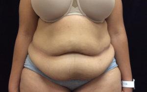 Abdominoplasty Gallery - Patient 4594905 - Image 20