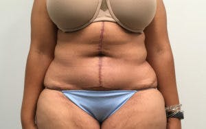 Post Bariatric Gallery - Patient 4710455 - Image 2