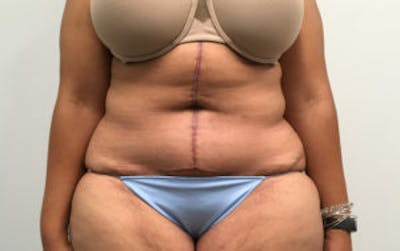 Tummy Tuck (Abdominoplasty) Gallery - Patient 4594905 - Image 2