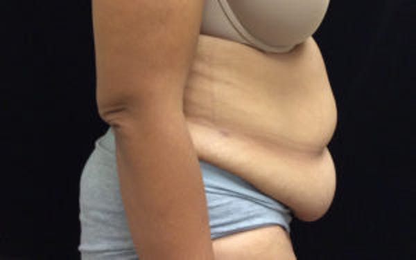 Tummy Tuck (Abdominoplasty) Gallery - Patient 4594905 - Image 3