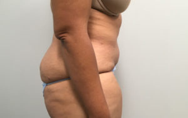 Tummy Tuck (Abdominoplasty) Gallery - Patient 4594905 - Image 4