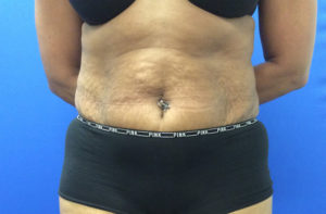 Abdominoplasty Gallery - Patient 4594906 - Image 21