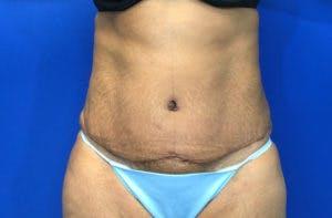 Abdominoplasty Gallery - Patient 4594906 - Image 2