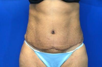 Tummy Tuck (Abdominoplasty) Gallery - Patient 4594906 - Image 2