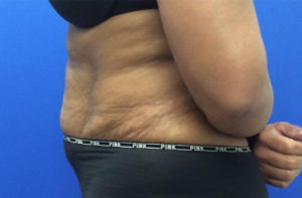 Tummy Tuck (Abdominoplasty) Gallery - Patient 4594906 - Image 3