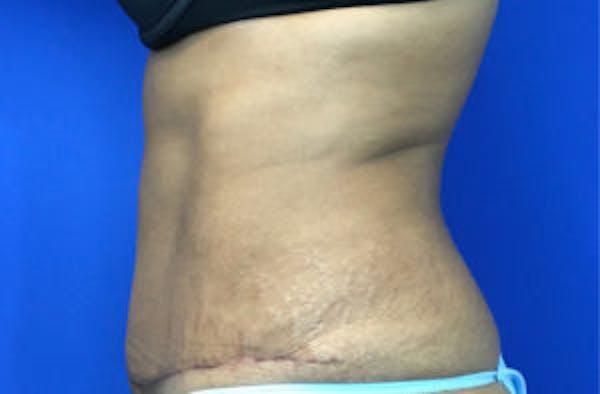 Tummy Tuck (Abdominoplasty) Gallery - Patient 4594906 - Image 4