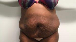 Abdominoplasty Gallery - Patient 4594907 - Image 1