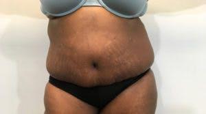 Abdominoplasty Gallery - Patient 4594907 - Image 2