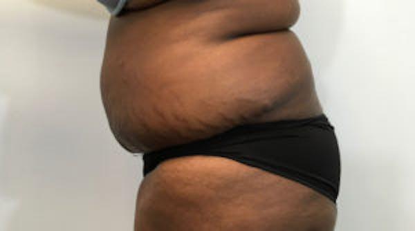 Tummy Tuck (Abdominoplasty) Gallery - Patient 4594907 - Image 4
