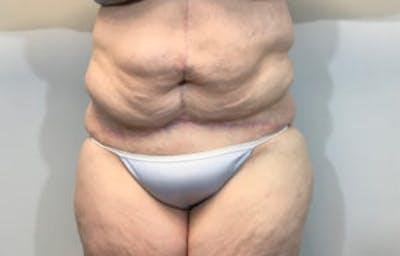Tummy Tuck (Abdominoplasty) Gallery - Patient 4594908 - Image 2