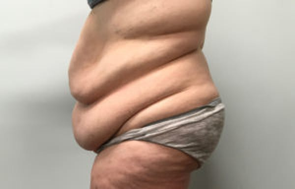 Tummy Tuck (Abdominoplasty) Gallery - Patient 4594908 - Image 3