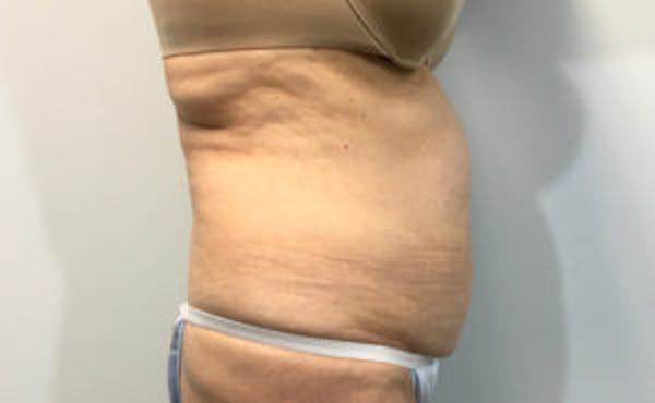 Tummy Tuck (Abdominoplasty) Gallery - Patient 4594909 - Image 3