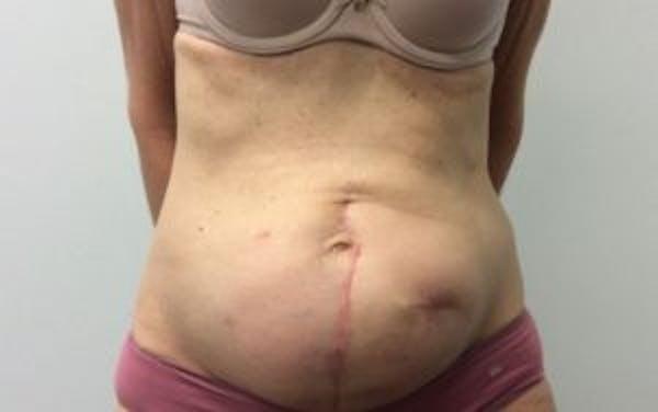 Tummy Tuck (Abdominoplasty) Gallery - Patient 4594910 - Image 1