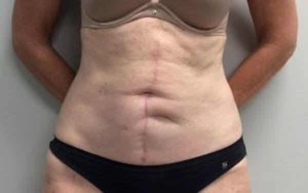 Tummy Tuck (Abdominoplasty) Gallery - Patient 4594910 - Image 2