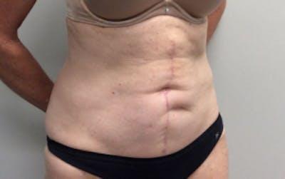 Tummy Tuck (Abdominoplasty) Gallery - Patient 4594910 - Image 4