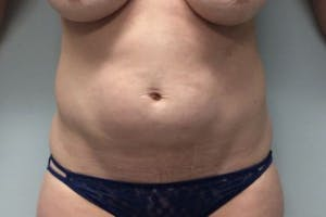Abdominoplasty Gallery - Patient 4594911 - Image 1