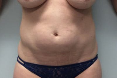 Tummy Tuck (Abdominoplasty) Gallery - Patient 4594911 - Image 1