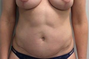 Abdominoplasty Gallery - Patient 4594911 - Image 2