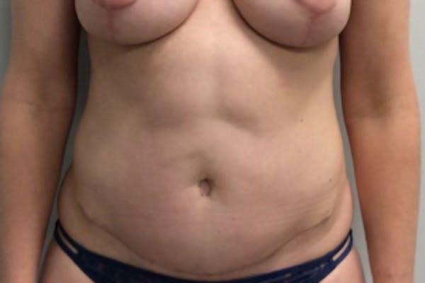 Tummy Tuck (Abdominoplasty) Gallery - Patient 4594911 - Image 2
