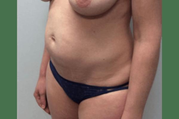Tummy Tuck (Abdominoplasty) Gallery - Patient 4594911 - Image 3